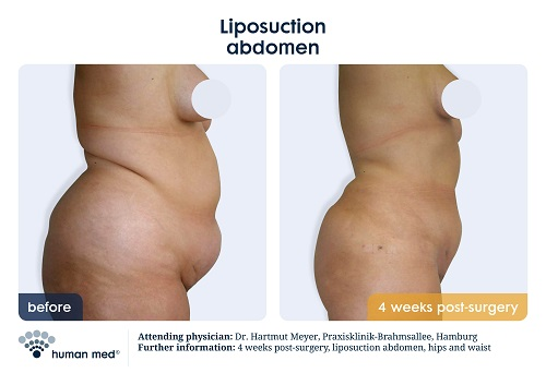 Liposuction Belly
