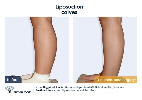 Liposuction Legs