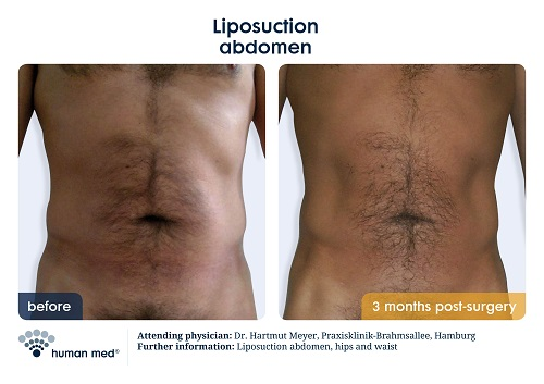 Liposuction Stomach