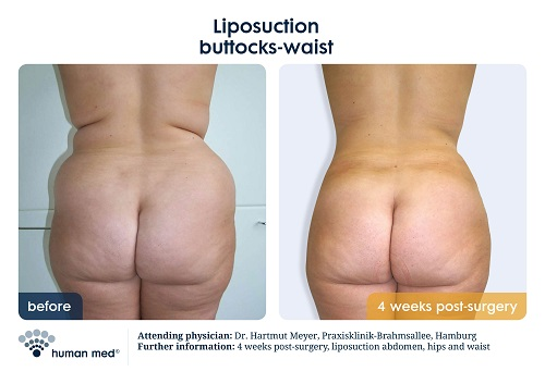 Liposuction Buttocks