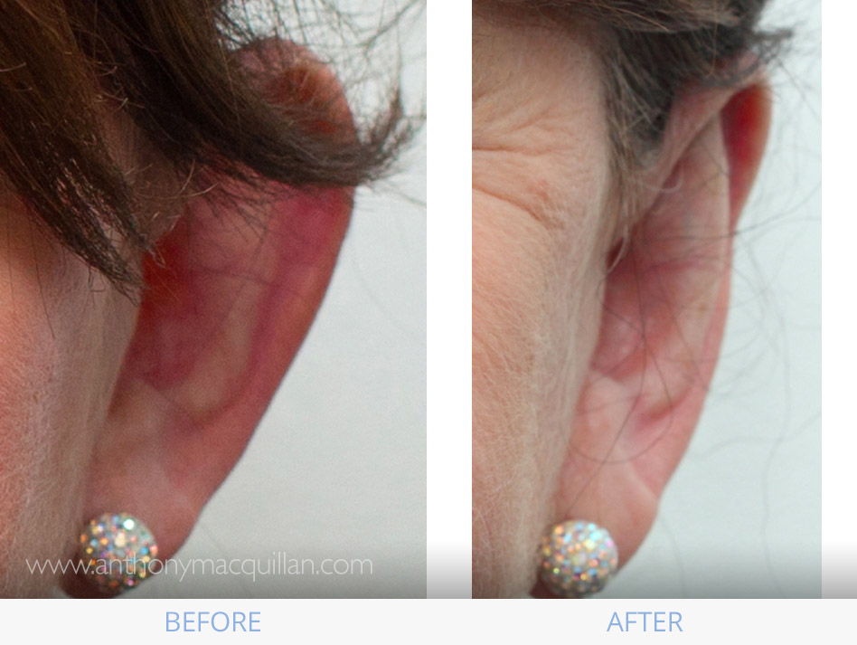 Ear Surgery Otoplasty