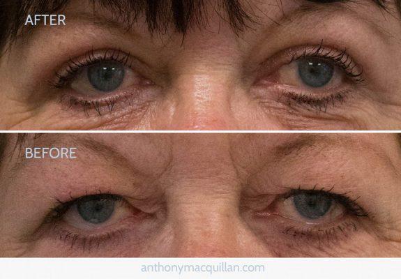 Eyelid Blepharoplasty Surgery