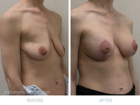 Mastopexy Breast Uplift Enlargement