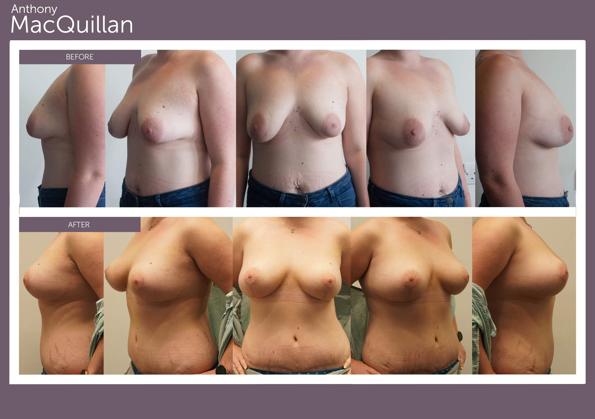 Mastopext Breast Uplift before and after